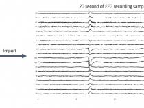 てんかん脳の機能的結合性: EEG データの前処理 – パート 2