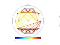 てんかん脳の機能的結合性: 機能的結合性の抽出 – パート 3